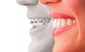 Invisalign available at Newman Family Dentistry in Indianapolis Indiana